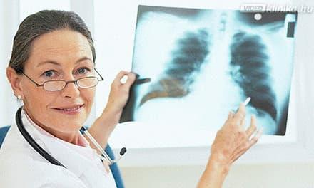 tüdő tisztulása dohányzás után