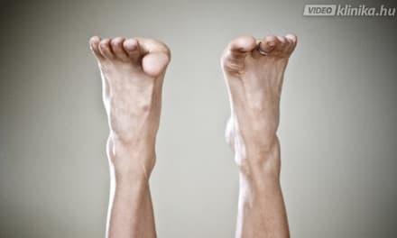 a lábízület nagyon fáj duzzadt az ízületek körül