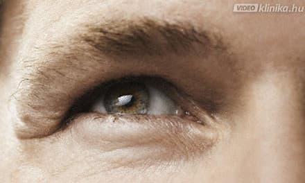 hirtelen látásvesztés egyik szemre