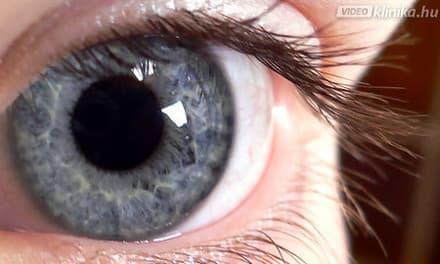 videoklinika.hu - Kancsalság kezelése 4ca858f1b2
