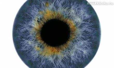 fekete foltok látása