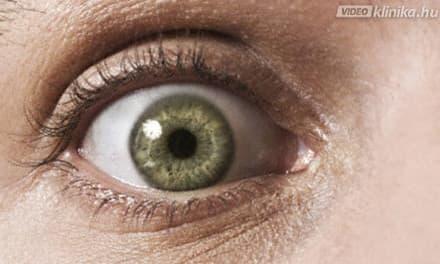meztelen látásvizsgálat