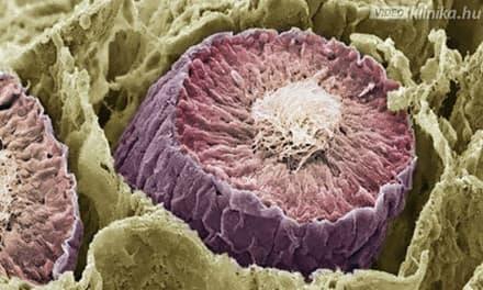 nyirokrendszeri rák hasnyálmirigyrák statisztikák