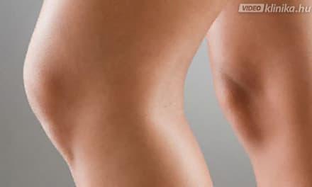 a térd zsírleszívása visszerek esetén