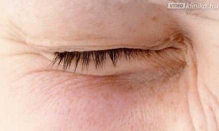 szemészeti klinika árpa