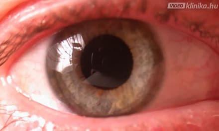 A látás fenntartása astigmatizmussal