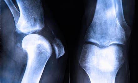 térd traumás rándulása a szubtalaris ízület artrózisa